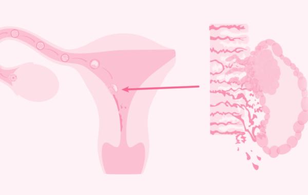 Fertility Benidorm Inicio